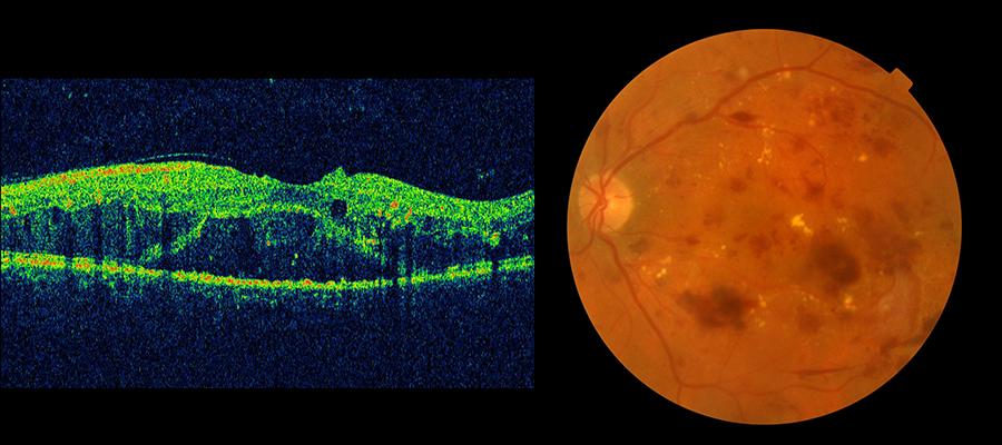 OCT e foto a colori dell'Edema Maculare Diabetico prima dell'inizio del trattamento mediante iniezioni intravitreali