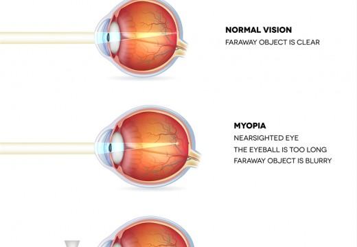A volte la miopia aiuta!