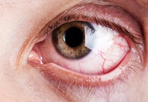 L'Occhio Rosso