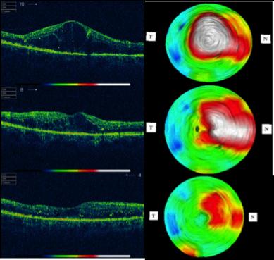 Nella prima fila, l'immagine centrale raffigura la macula edematosa di un paziente diabetico. L'immagine centrale della seconda e terza file mostra come l'edema si riduce a 3 e 6 mesi dal trattamento laser