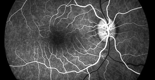 angiografia oculare